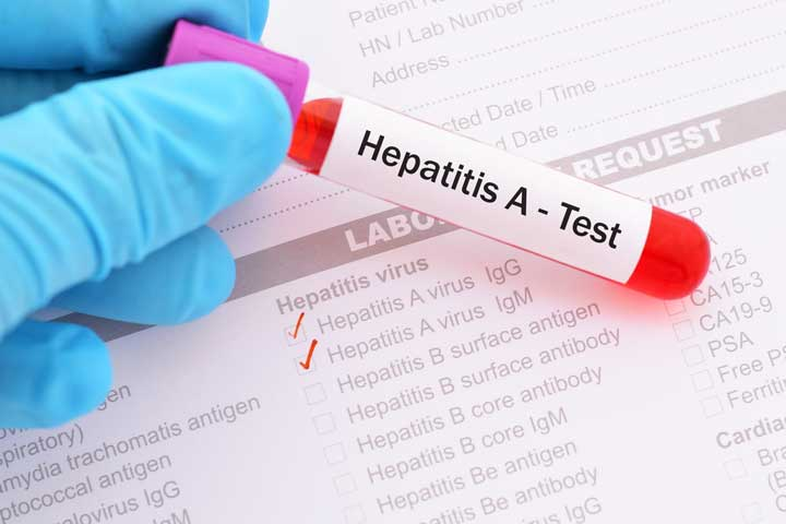 What is the hepatitis A serology