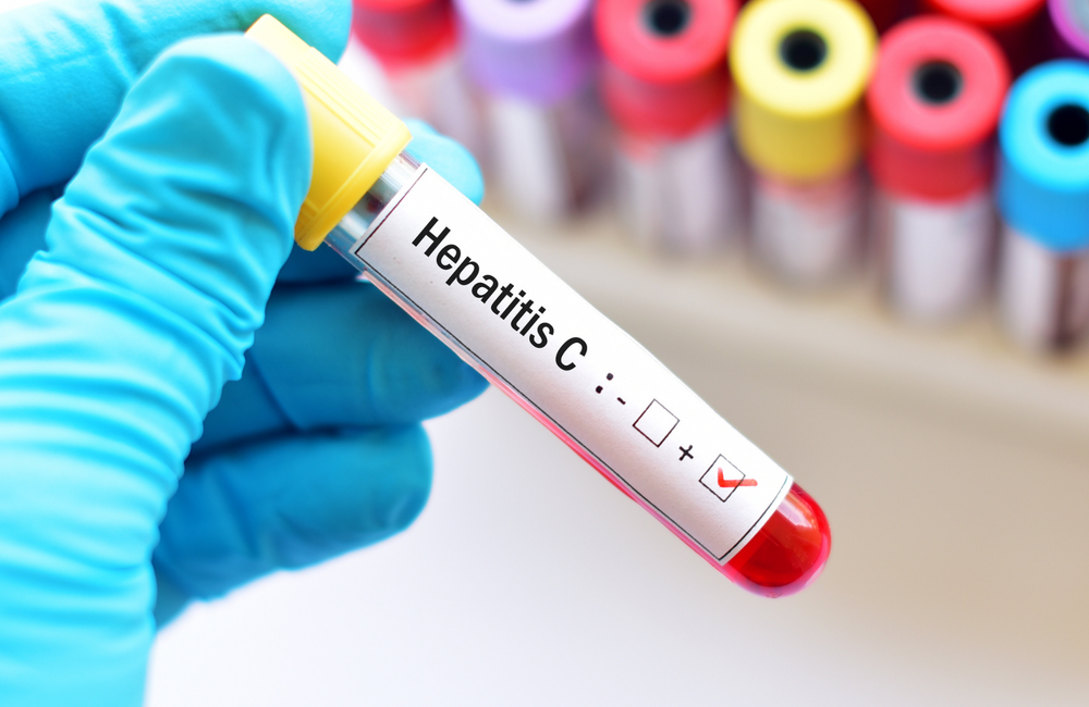 What kills hepatitis c virus on surfaces?